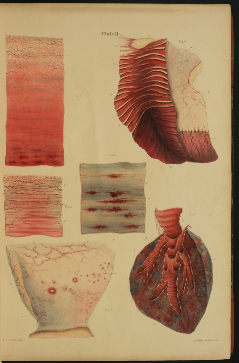 Pathological Anatomy. Illustrations of the Elementary Forms of ...